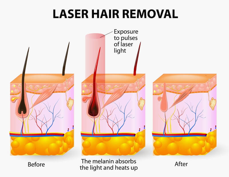 Laser hair removal faqs pure vanity spa arizona laser hair removal follicle growth solutioingenieria Images