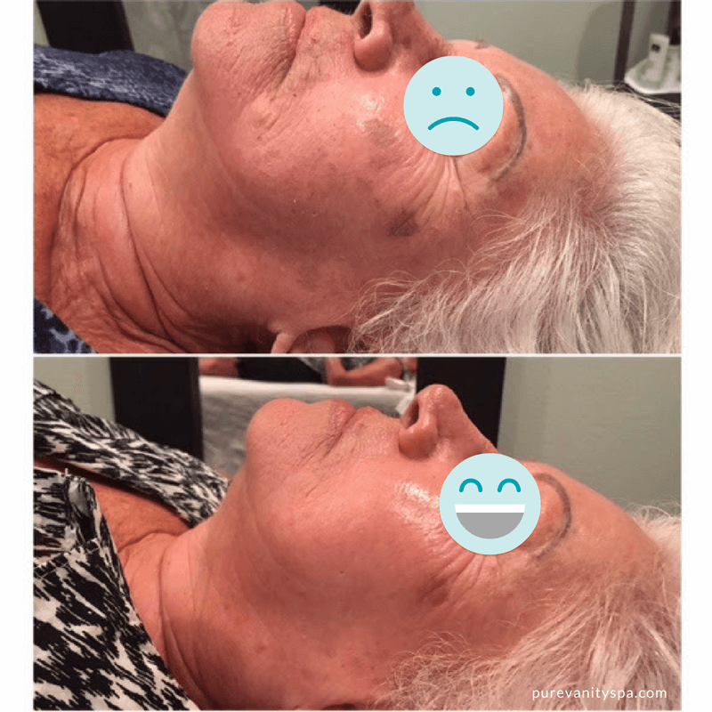 Perfect Peel Before and After